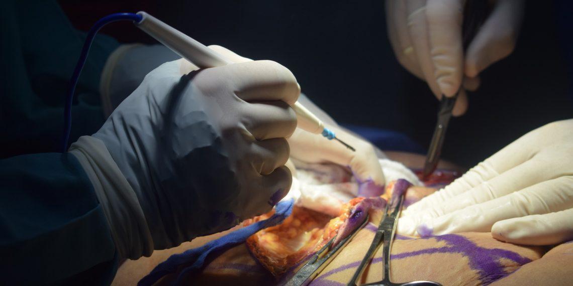 Ein Schönheits-Chirurg steht unter Verdacht des Ärzte-Pfuschs. (Foto: Catalina Rojas, Pixabay)
